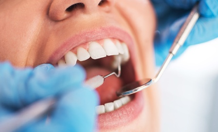 Close image of woman getting her teeth examined/operated on