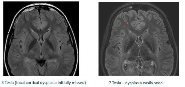 Partner investment in 7 Tesla MRI impacts Illinois research, patient care